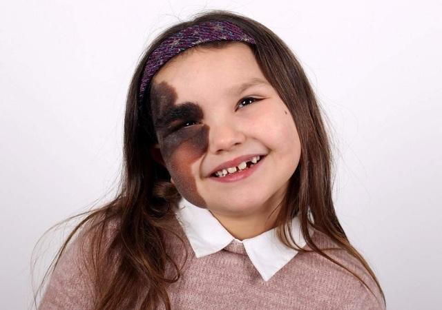 Cô bé 7 tuổi tự tin với vết bớt hiếm gặp chiếm nửa khuôn mặt  - 1