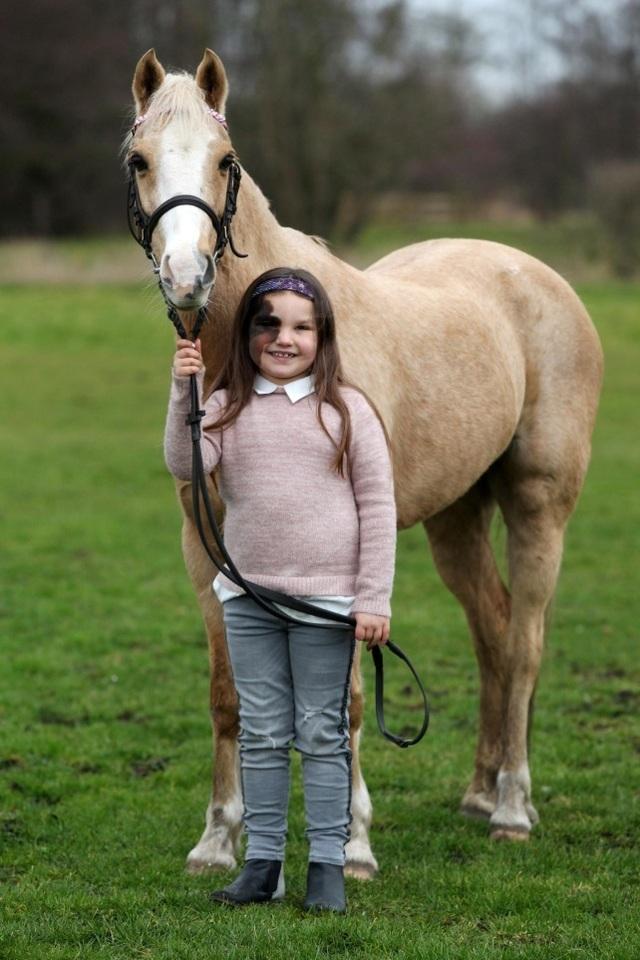 Cô bé 7 tuổi tự tin với vết bớt hiếm gặp chiếm nửa khuôn mặt  - 2