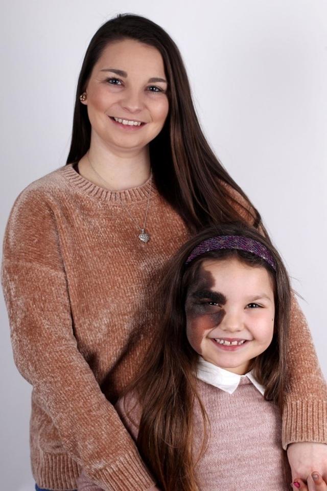 Cô bé 7 tuổi tự tin với vết bớt hiếm gặp chiếm nửa khuôn mặt  - 3