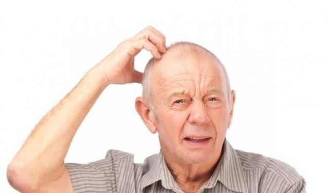 Đột quỵ xuất huyết não là gì? Triệu chứng và cách điều trị bệnh - 1