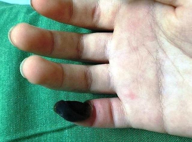 Ngón tay bé T. khi nhập viện đang bị hoại tử. Ảnh: BV Sản nhi Nghệ An cung cấp.