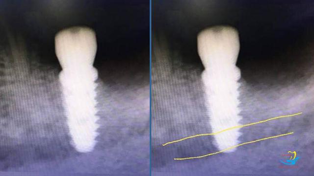 4 lưu ý khi lựa chọn trung tâm trồng răng implant - 2