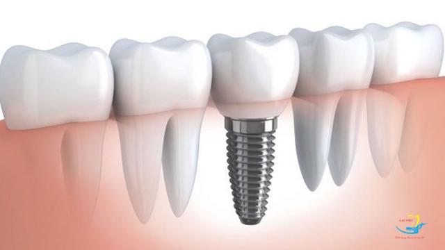 4 lưu ý khi lựa chọn trung tâm trồng răng implant - 5