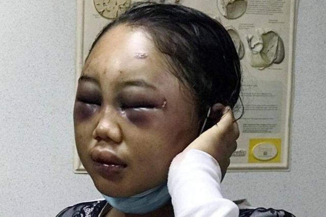 Chấn động những vụ ngược đãi người giúp việc nước ngoài tại châu Á - 1