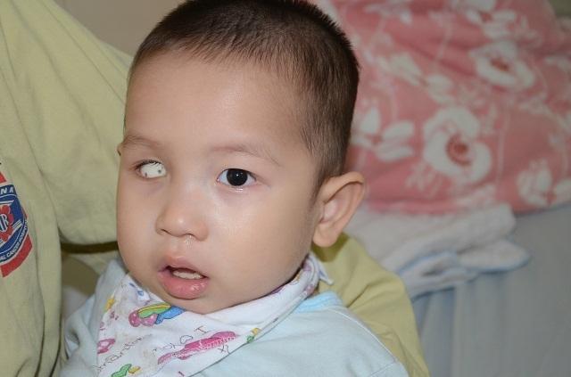 Tiếng khóc xé lòng của bé trai 16 tháng tuổi mắc ung thư võng mạc - 1