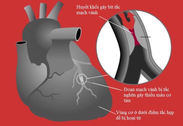 Nguyên nhân gây thiếu máu cơ tim không chỉ đến từ mảng xơ vữa - 3
