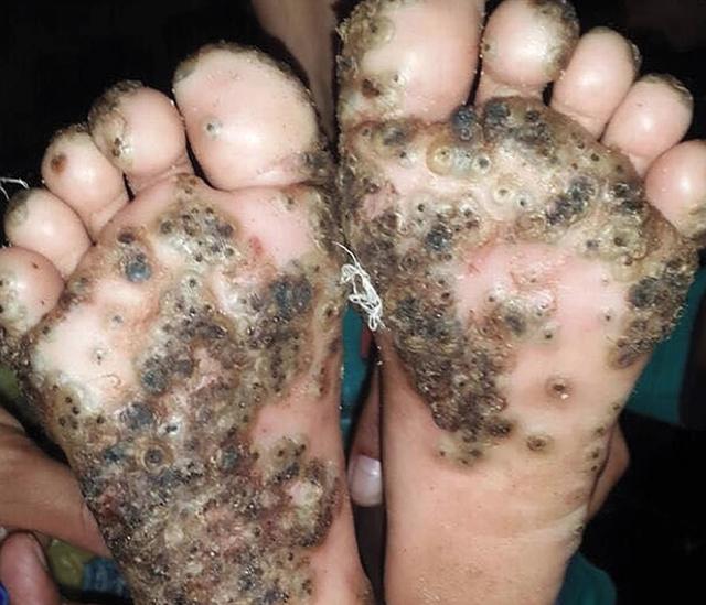 Rùng mình bàn chân bé gái 10 tuổi bị bệnh lạ sau khi đến Brazil - 1