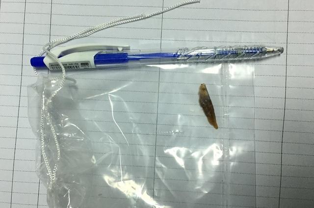 Mảnh xương heo đâm thủng ruột bệnh nhân