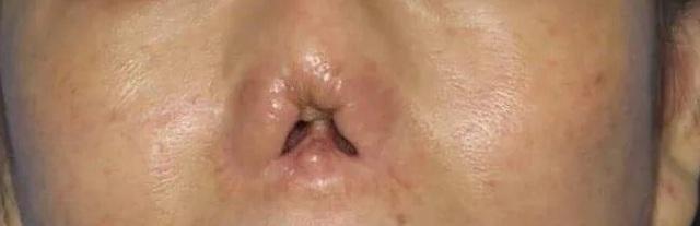 Kỳ lạ cắt vành tai tạo hình mũi cho nữ bệnh nhân - 1