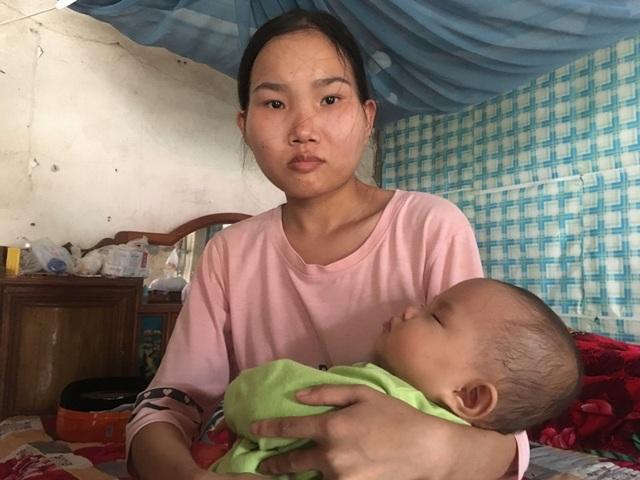 Vợ vừa sinh con, chồng lại bị tai nạn giao thông với nguy cơ cắt cụt một cẳng chân - 5