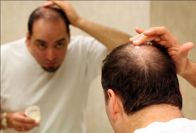 Kích thích sự phát triển của nang tóc - 1