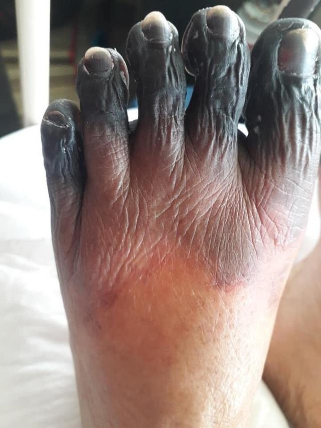 """Các ngón chân, tay khô đen như phim """"kinh dị"""" - 2"""