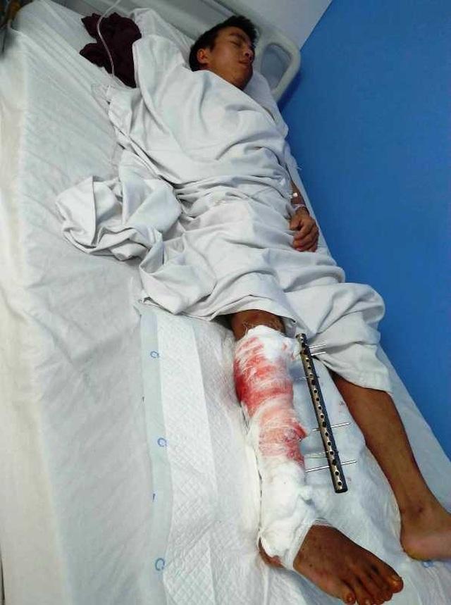 Vợ vừa sinh con, chồng lại bị tai nạn giao thông với nguy cơ cắt cụt một cẳng chân - 2