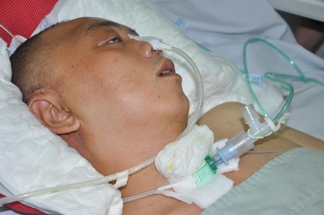 Đột nhiên bị chảy máu não, tính mạng người bố trẻ nguy kịch trong tiếng gọi thảm thiết của con - 1