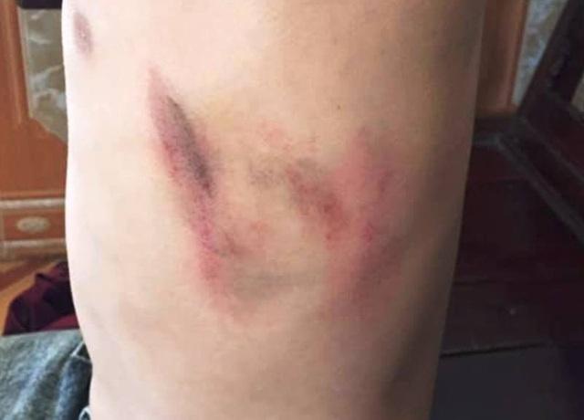 Một học sinh cấp 2 bị phụ huynh hành hung tại trường - 2