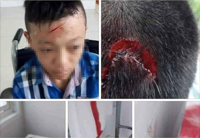 Vĩnh Long: Xác minh thông tin nhà trường bỏ mặc học sinh bị bạn đánh chảy máu - 2
