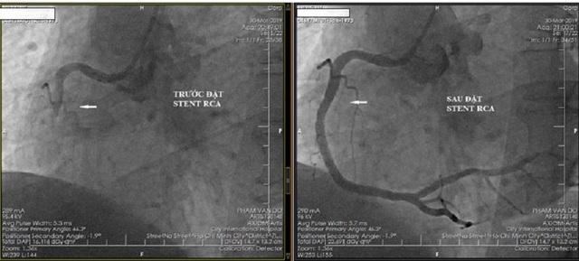 Du khách Úc bị nhồi máu cơ tim sau chuyến bay - 1