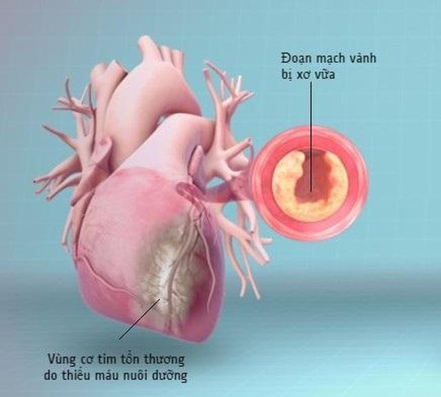 Triệu chứng thiếu máu cơ tim, không phải lúc nào cũng là đau thắt ngực! - 1