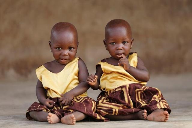"""Kỳ lạ thị trấn Nigeria được mệnh danh là """"thủ phủ sinh đôi của thế giới"""" - 1"""