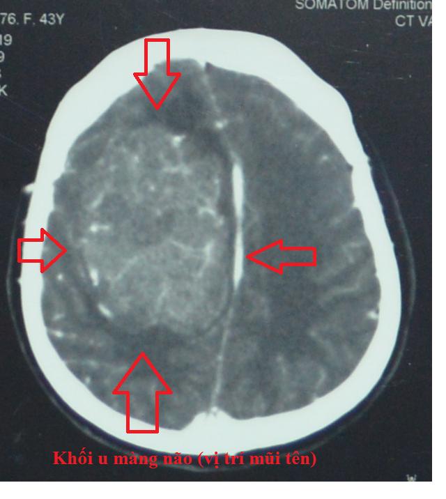 Người phụ nữ bị động kinh liên tục do bị khối u màng não khổng lồ - 1