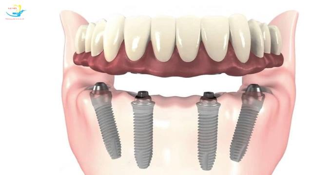 Cấy ghép implant All on 4: Giải pháp cho người mất răng toàn hàm - 1