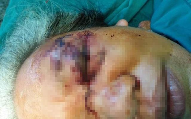Người phụ nữ bị tổn thương nặng vùng mắt vì... trâu húc vào mặt - 1