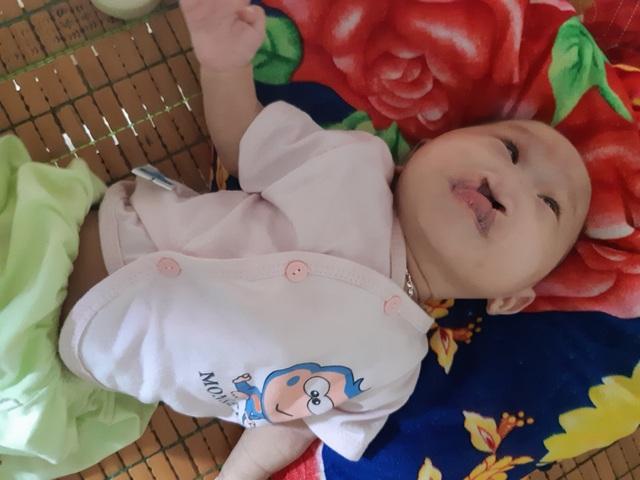 Mong manh số phận bé 4 tháng tuổi bị tim bẩm sinh, hở hàm ếch đợi một phép màu! - 4