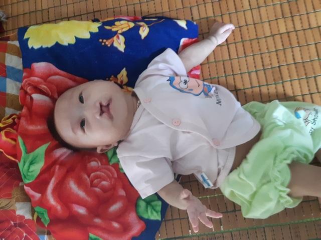 Mong manh số phận bé 4 tháng tuổi bị tim bẩm sinh, hở hàm ếch đợi một phép màu! - 1