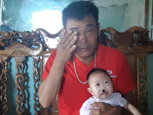 Mong manh số phận bé 4 tháng tuổi bị tim bẩm sinh, hở hàm ếch đợi một phép màu! - 3