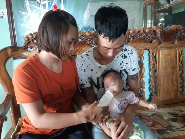 Mong manh số phận bé 4 tháng tuổi bị tim bẩm sinh, hở hàm ếch đợi một phép màu! - 5