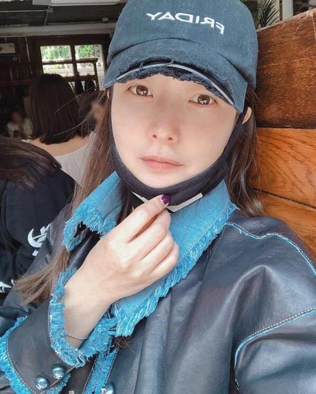 Gương mặt sưng phù của biểu tượng nhan sắc xứ Hàn Kim Hee Sun khiến fan hoang mang - 1