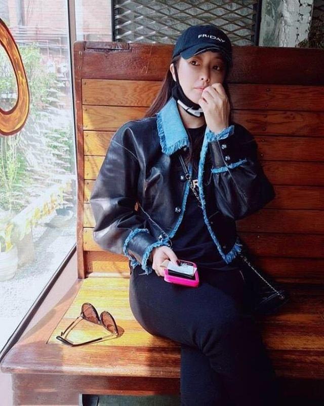 Gương mặt sưng phù của biểu tượng nhan sắc xứ Hàn Kim Hee Sun khiến fan hoang mang - 2