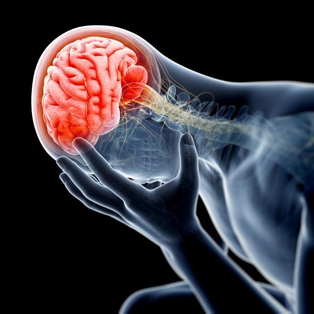 Phương pháp phục hồi chức năng não bộ giúp đẩy lùi di chứng não - 1