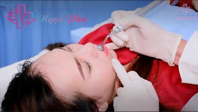 Phái đẹp ưa chuộng phun môi collagen tại Bệnh viện Thẩm mỹ Ngọc Phú - 3