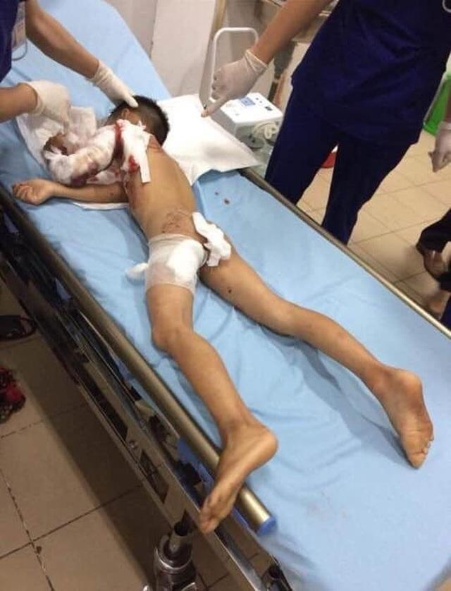 Bé trai 7 tuổi bị chính chó nhà cắn tử vong - 2