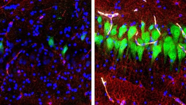 Các nhà khoa học khôi phục thành công một phần chức năng não lợn đã chết - 1