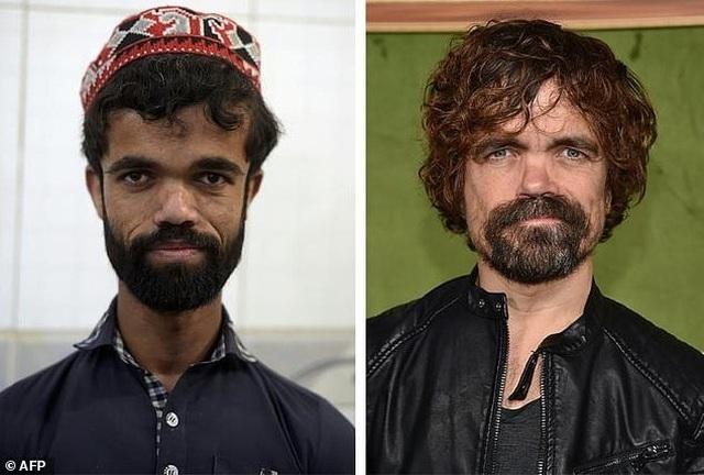 """Bất ngờ tìm thấy """"người anh em thất lạc"""" của Tyrion Lannister ở... Pakistan - 1"""