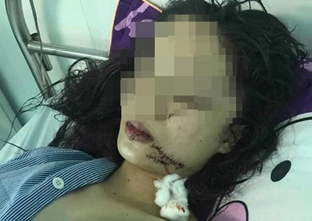 Thiếu nữ 18 tuổi bị 3 cô gái xông vào khống chế, dùng dao rạch mặt - 1