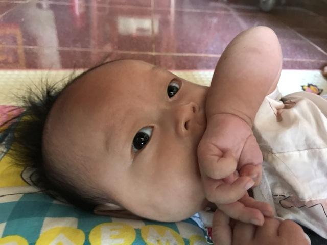 Bố mẹ nghèo, bé 3 tháng tuổi trên đảo Lý Sơn khốn khổ với hậu môn nhân tạo - 2