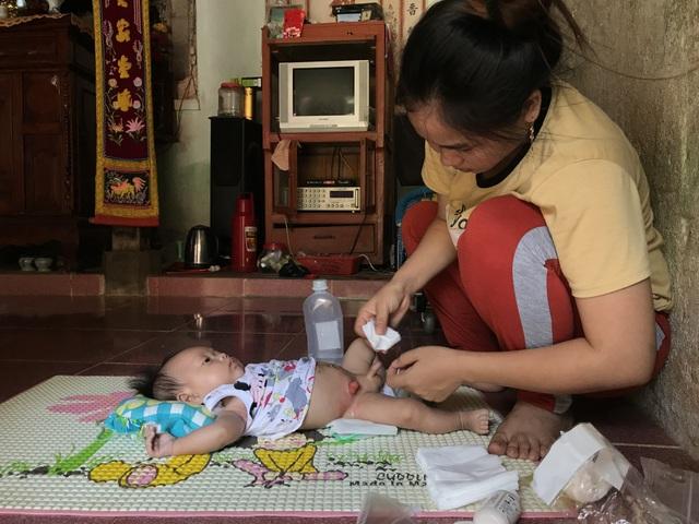 Bố mẹ nghèo, bé 3 tháng tuổi trên đảo Lý Sơn khốn khổ với hậu môn nhân tạo - 3