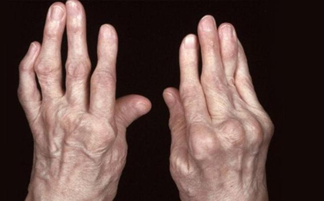 4 hậu quả khôn lường nếu không sớm điều trị viêm đa khớp - 1