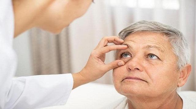 5 di chứng của tai biến mạch máu não dễ gặp phải - 3