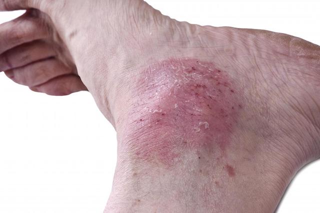 Vẩy nến ở chân là bệnh gì? Điều trị ra sao cho hiệu quả? - 1