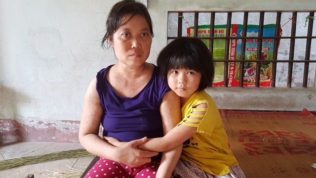 Người đàn bà khốn khổ ở viện nhiều hơn ở nhà vì mắc bệnh hiểm - 2