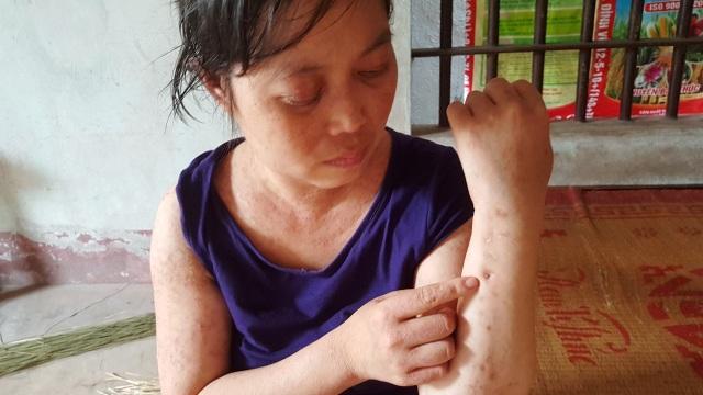 Người đàn bà khốn khổ ở viện nhiều hơn ở nhà vì mắc bệnh hiểm - 3