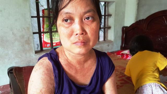 Người đàn bà khốn khổ ở viện nhiều hơn ở nhà vì mắc bệnh hiểm - 1