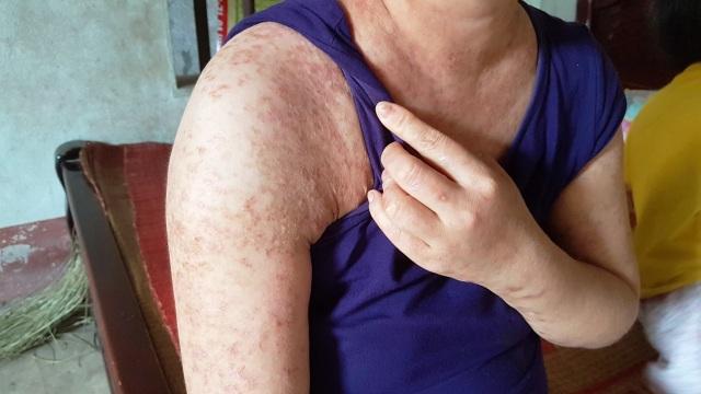 Người đàn bà khốn khổ ở viện nhiều hơn ở nhà vì mắc bệnh hiểm - 4