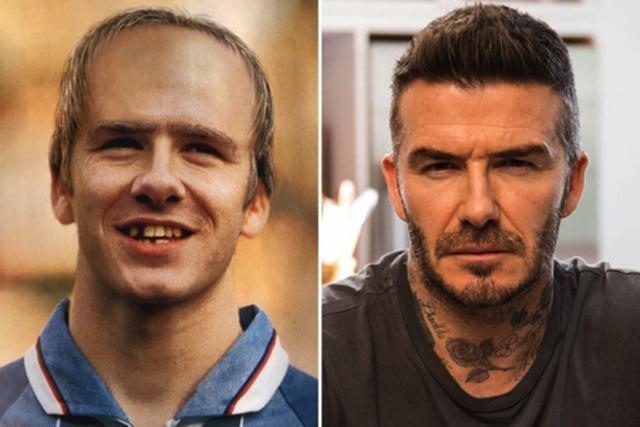 Hài hước với hình ảnh Beckham rụng răng, hói đầu vào năm… 2020 - 1