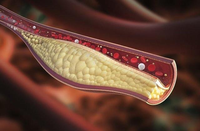 Điều trị rối loạn lipid máu như thế nào? - 2
