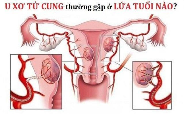 U xơ tử cung thường gặp ở lứa tuổi nào? - 2